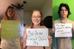 Sarah Neal, Liam Forde, and Alex Lee stand up against body shaming. Worth is not defined by acne, scars, or hair (Photo courtesy of Sarah Neal, Alex Lee, and Liam Forde).